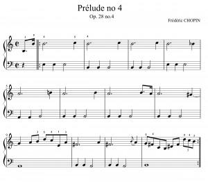 1chopin-mélodiemdharmoniemg-1